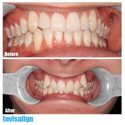 Simon Fraser Dental - Teeth Whitening Services - 604-267-3368