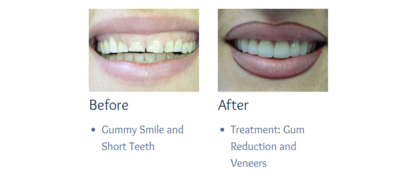 Dentistry On Church Street - Teeth Whitening Services - 905-727-0007