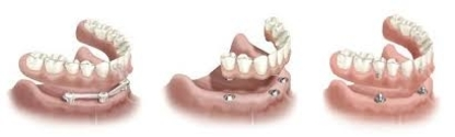 Bouchard Caroline - Denturologistes - 450-581-9226