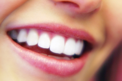 Dr Sajner & Associates - Teeth Whitening Services