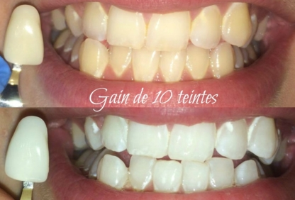 Le Rire Blanc - Teeth Whitening Services
