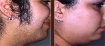 The Laser Clinic Newmarket - Salons de coiffure et de beauté - 905-235-3985
