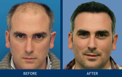 Hasson & Wong Aesthetic Surgery - Hair Removal
