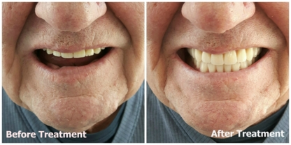 Kelowna Denture Clinic - Health Information & Services