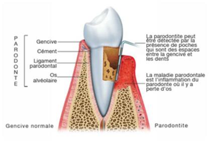Clinique Dentaire Duranleau & Jean - Traitement de blanchiment des dents - 418-343-2191