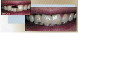 Redwater Dental Clinic - Teeth Whitening Services