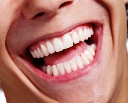 Centre Dentaire Rome Milan - Teeth Whitening Services - 450-676-2626