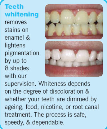 Dr James Eyamie - Teeth Whitening Services - 613-725-1560