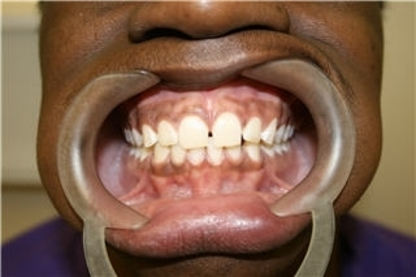 Toothworks - Dentists - 416-267-5754