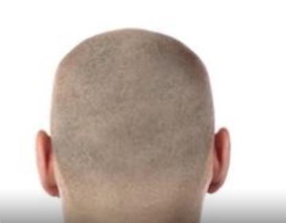 Dermo-Esthétika - Hair Extensions - 581-995-4208