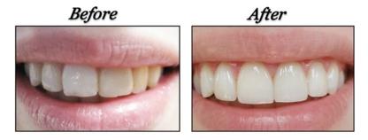 PocoSmiles Dental - Dentistes - 604-942-0440