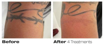 Precision Laser Tattoo Removal
