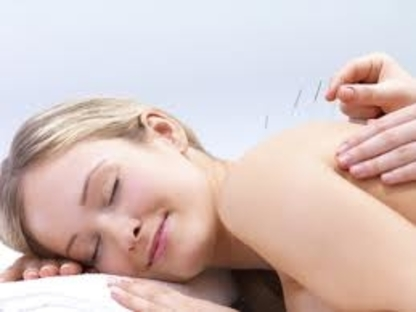 Total Acupuncture Clinic - Acupuncturists - 403-815-8880