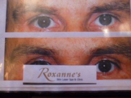 Roxanne Skin Laser Spa - Hairdressers & Beauty Salons - 604-281-2786