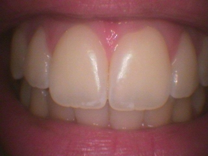 Dental Hygiene Care - Teeth Whitening Services - 905-868-8110