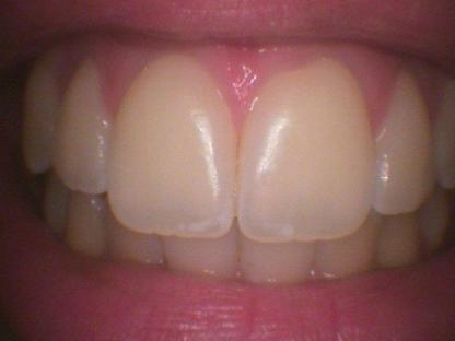 Dental Hygiene Care - Dental Hygienists - 905-868-8110