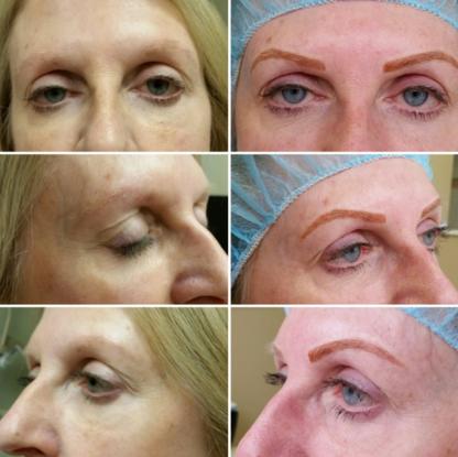 My Micro Pigmentation - Beauty & Health Spas - 647-831-0298