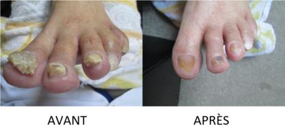 soins de pieds montreal