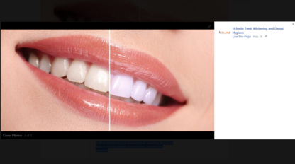 H-Smile Teeth Whitening and Dental Hygiene - Dental Clinics & Centres - 905-237-9333