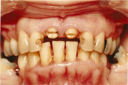 Enger Kerry A Dr - Dentists - 780-674-5555
