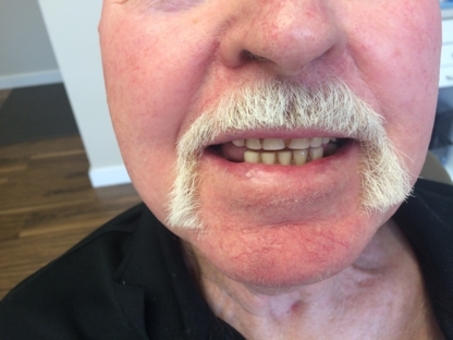Danforth Denture Clinic - Teeth Whitening Services - 416-462-1211