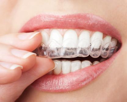 Hamilton Dental Hygiene Care - Teeth Whitening Services - 905-523-4132