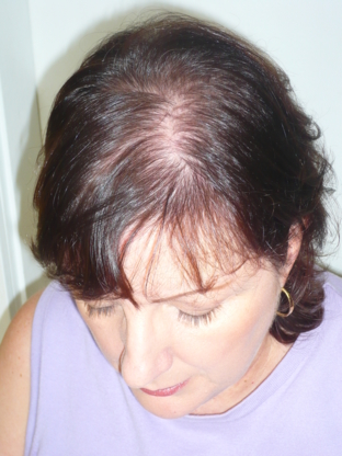 Real Hair Loss Solution - Hair Transplants & Replacement