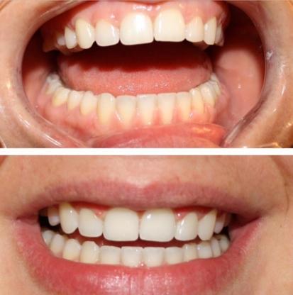 Bright Smile - Traitement de blanchiment des dents - 514-924-4719
