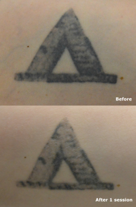 Tattoo Removal Canada - Laser Tattoo Removal