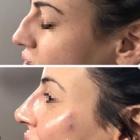 NV Beauty Boutique - Beauty & Health Spas - 289-968-2028