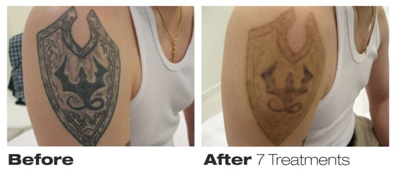 Precision Laser Tattoo Removal Toronto On 76 Richmond