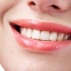 Clinique Dentaire Dr Tony Khoury - Traitement de blanchiment des dents - 514-336-8686