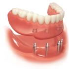 Dundas Denture Clinic - Denturists - 905-627-8478