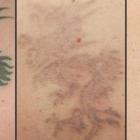 Tattoo Time Machine - Détatouage laser