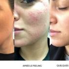 Espace Skins Montréal - Laser Hair Removal