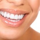Dr Michael Youssef - Traitement de blanchiment des dents