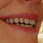 Harbour City Denture - Denturists
