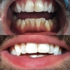 Teeth Whitening by Therese - Teeth Whitening Services