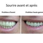 Clinique de Denturologie Johanne Têtu - Teeth Whitening Services
