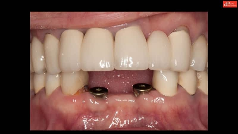 Alderbridge Dental Richmond Bc 120 8080 Leslie Rd