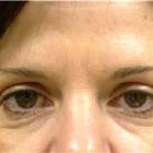 Bellissima Medical Aesthetics - Cosmetic & Plastic Surgery - 506-855-1323