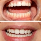 Bright Smile - Teeth Whitening Services