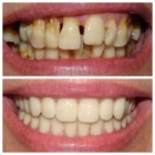 North York Smile Centre - Teeth Whitening Services - 416-730-8223